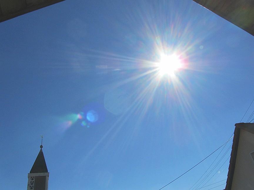 Habe ich einen Sonnenstich, gibt es typische Symptome oder gar einen Sonnenstich Test?