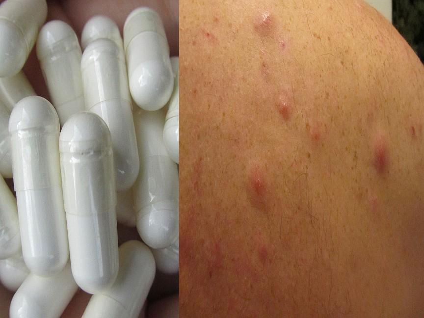 MSM eigene Erfahrungen zum Thema Methylsulfonylmethan in Verbindung mit einer Entgiftung (Detox) und dessen Wirkung auf meine Haut mit Entzündungen und Pickel