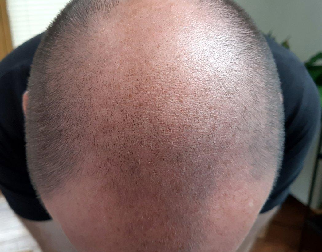 Maßnahmen bei erblich bedingtem Haarausfall bei Männern – Haarverpflanzung, Medikamente, Perücke oder doch lieber Psychotherapie und Arbeit am eigenen Selbstbewusstsein?