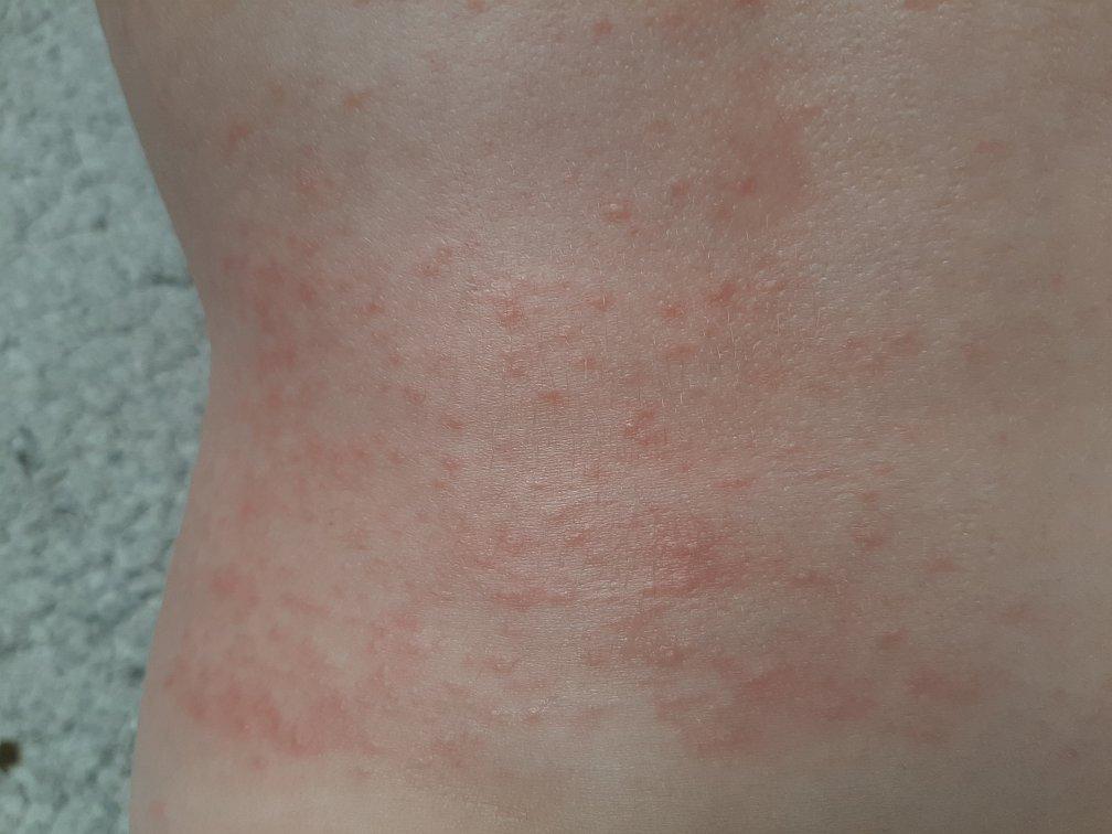 Erdbeerallergie - Hautausschlag, Übelkeit und Bauchschmerzen - Die Dauer und Intensität der Symptome