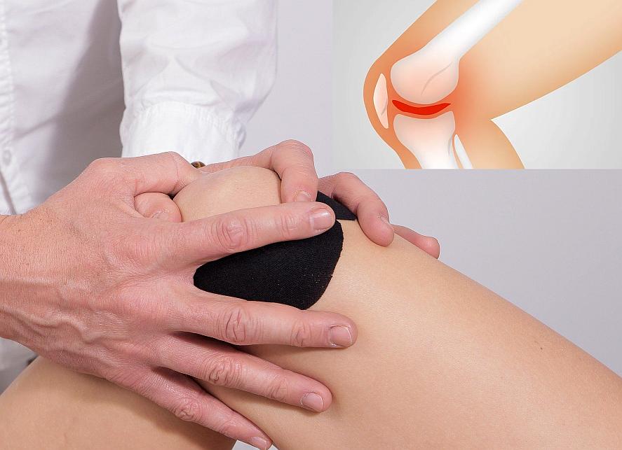 Wie man Arthrose und andere Gelenkerkrankungen vorbeugen und abmildern kann